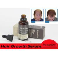 Customized Service Natural Growth 50ml Hair Growth Serum OEM Hair Baldness Solution Manufactures