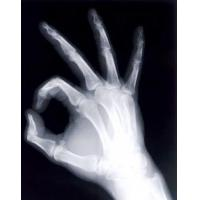 Cheap Medical X Ray Film(Green Sensitive) for sale