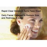 Cheap Whitening Vitamin C Oil Control Face Cleanser To Help Minimize Pores for sale