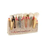 Tooth Model Hl-60032